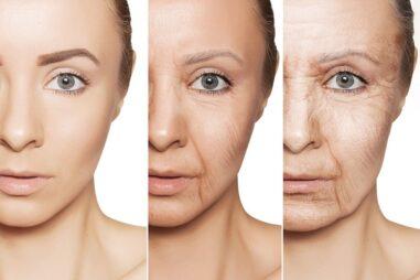 invecchiamento precoce malattia rara