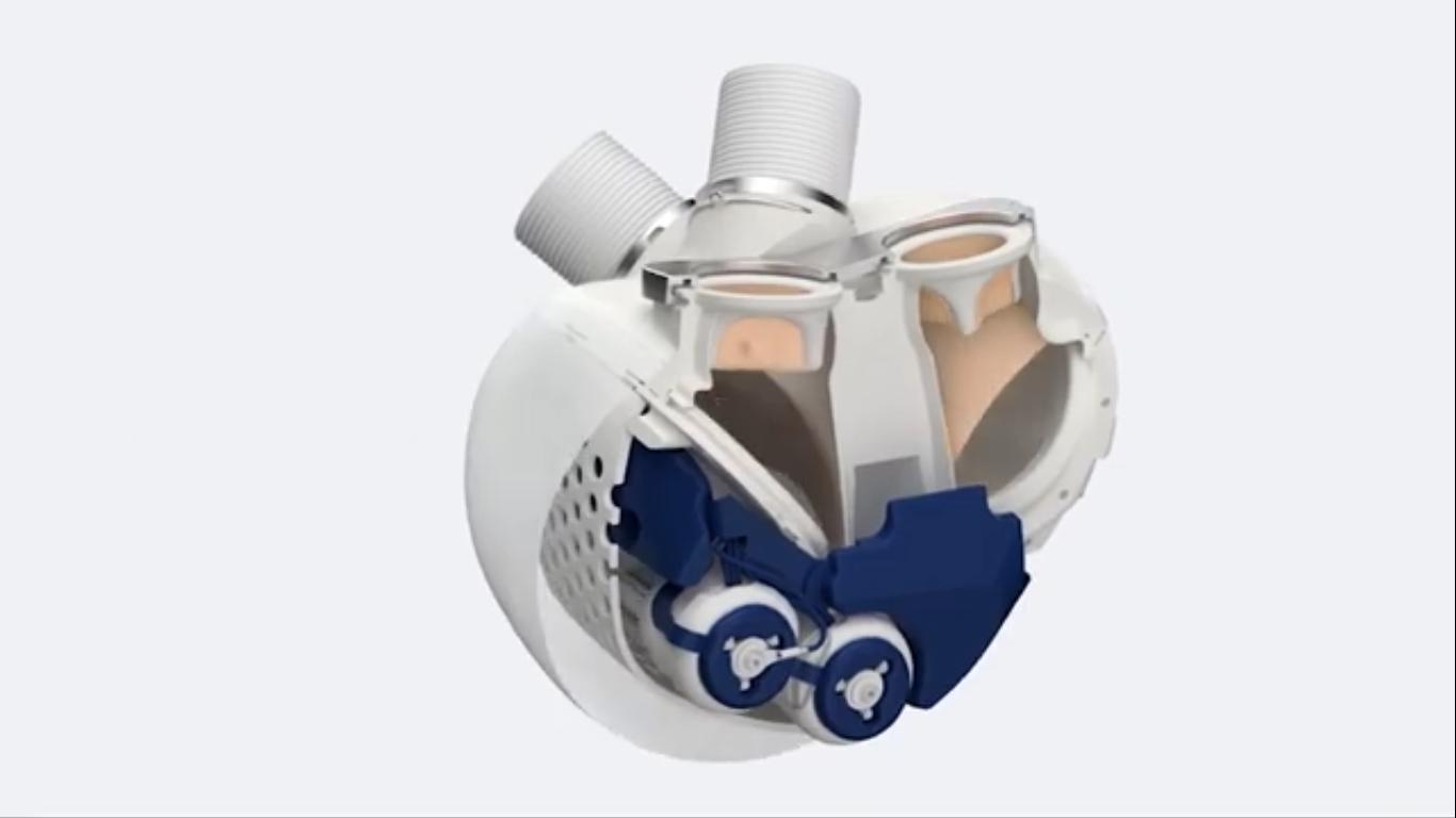 Unione Europea ufficializza la vendita del primo cuore artificiale
