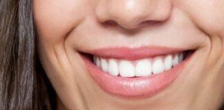 Salute denti alimenti più dannosi