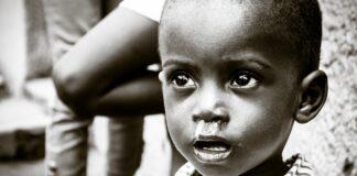 Malnutrizione Burkina Faso