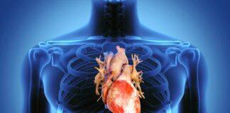 CaRI-Heart