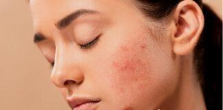 Prevenzione acne