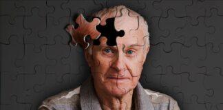 Alzheimer prevenzione